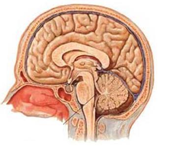 小儿脑脓肿百科