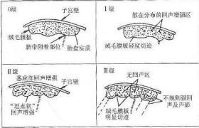胎盘成熟度介绍