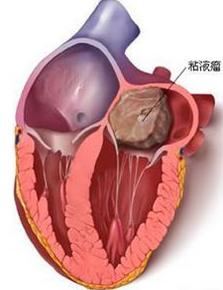 什么是心脏内粘液瘤   粘液瘤可发生于所有心脏的心内膜面,95%发生于