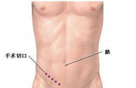 阑尾切除术