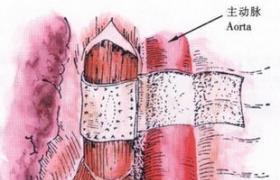 腹部食管穿孔修补术