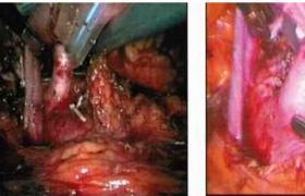 常规肾移植术