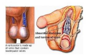 肾静脉周围型及肝下型腔静脉癌栓的手术