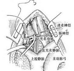 锁骨下动脉损伤修复术