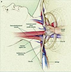 静脉切开插管术