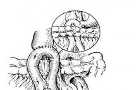 纵行胰管空肠吻合术