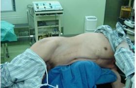肾囊肿去顶减压术