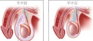 鞘膜积液切除翻转术
