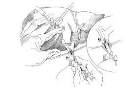 U形管肝胆管引流术