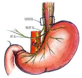 高度选择性胃迷走神经干切断术