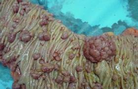经结肠镜大肠息肉摘除术