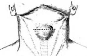 甲状腺舌囊肿切除术