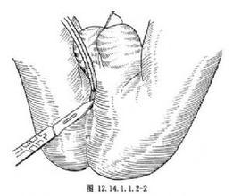 肛瘘切开术