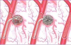 腘动脉瘤切除大隐静脉移植修复术