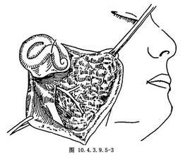 腮颈联合根治术
