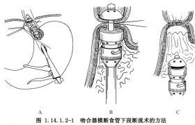 横断食管或胃底的联合断流术
