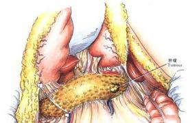 胰腺癌胰体尾部切除术