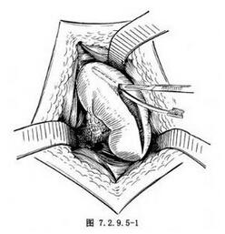 肾包膜、腰肌缝合肾固定术