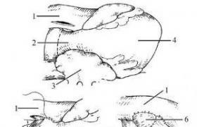 双入口心室姑息手术