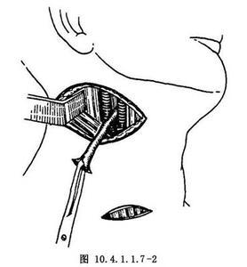 腮裂瘘切除术