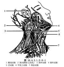 甲状腺上动脉插管术