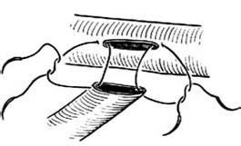 端侧缝合术