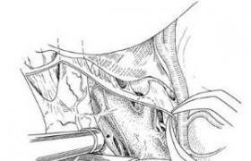 颈内动脉分叉部动脉瘤夹闭术