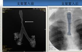 经颈内静脉行肝静脉成形内支撑术