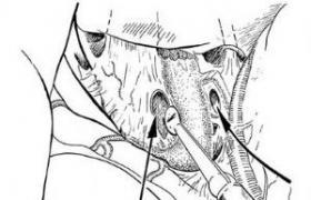 前交通动脉瘤夹闭术