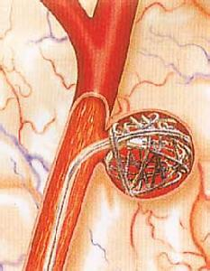 基底动脉分叉部动脉瘤夹闭术