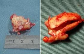 颈动脉内膜切除术