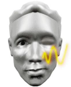 面肌抽搐微血管减压术