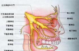 三叉神经痛神经血管减压术