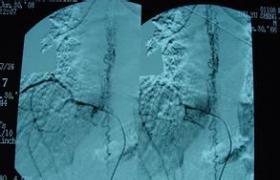 硬脊膜动静脉瘘手术