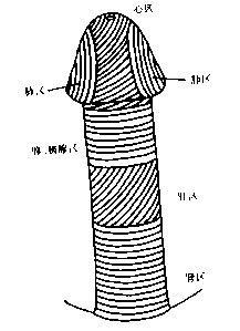 鸡巴云网址_国内王云肖1980年首次报道一例巨大阴茎矫形术,并获得成功.
