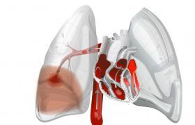 肺体塞切除术