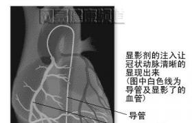 冠状动脉经腔气囊血管成形术