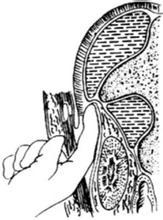 后侧腹膜外膈下脓肿切开引流术