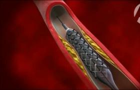 血管成形术