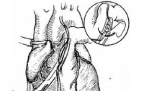 动脉切开术