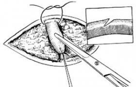 静脉放血术