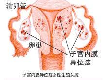 盆腔子宫内膜异位半保守性手术