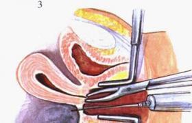 百姓导医台 手术项目 后穹窿穿刺术 首页 共收录 7197 个手术  就医诊