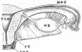 盆腔子宫内膜异位根治性手术