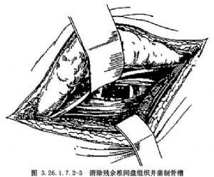 ��_腰4~骶1前路植骨融合术