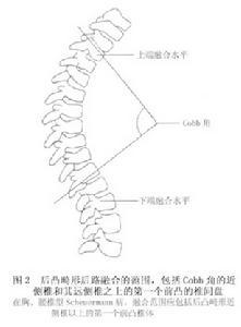 脊柱节段性器械矫形术