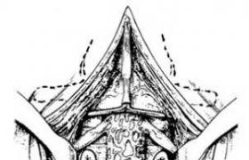 尺骨下端切除术及下尺桡关节重建术