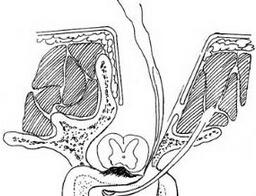 侧前方塌陷法半环状减压术