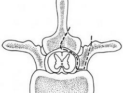 侧前方塌陷法半环减压术