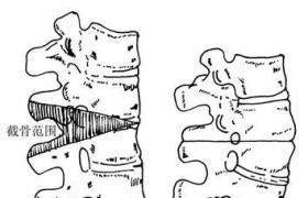 一次性多平面全脊椎多平面楔形截骨术